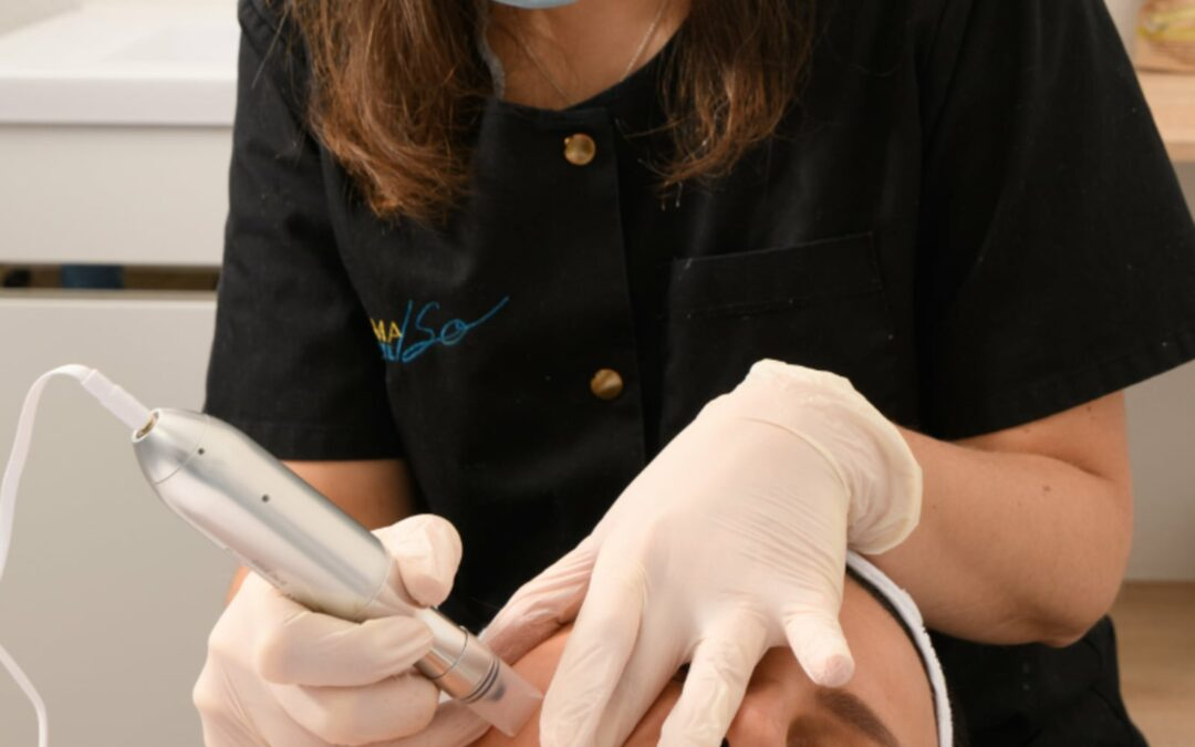Derma'so Facialiste - Institut de beauté - Valence - Microneeling